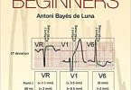 ECGs for Beginners 1st Edition PDF