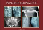 Surgical and Medical Treatment of Osteoporosis Principles and Practice PDF