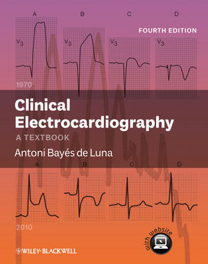 Clinical Electrocardiography A Textbook 4th Edition PDF